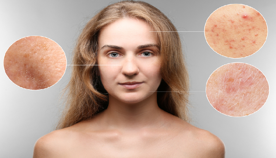 Skin Problem and the role of the Dermatologists